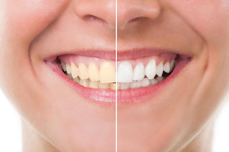 Teeth Whitening - DiTola Family Dental, Melrose Park Dentist
